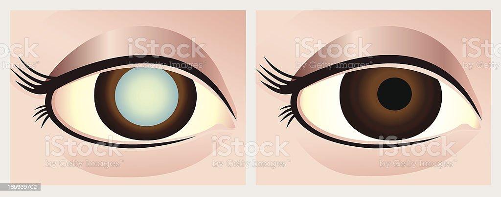 Cataract eye royalty-free stock vector art