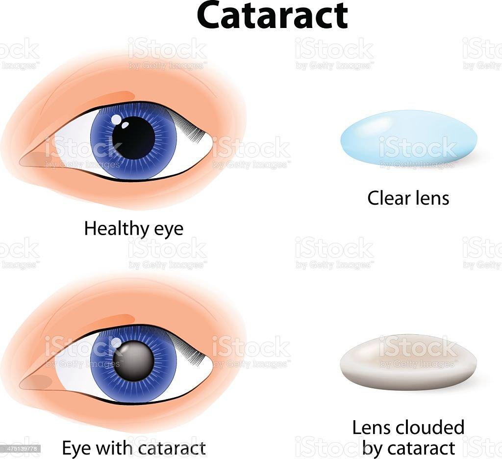 cataract is an clouding crystalline lens vector art illustration