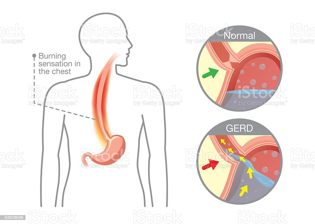 Cause Of Gastroesophageal Reflux Disease In Human Stomach Stock
