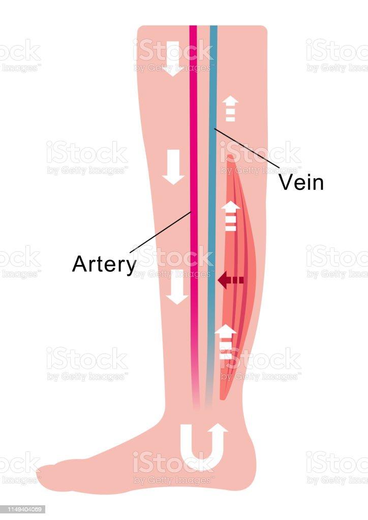 Pernas coágulo sanguíneo inchaço das
