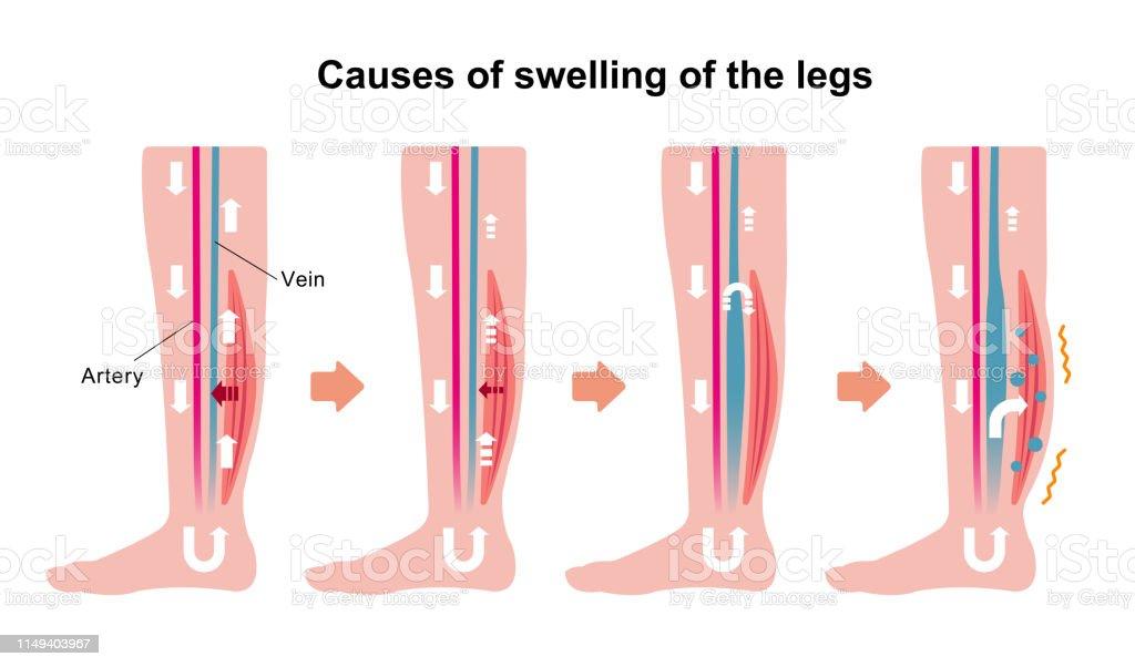 Causar nas pernas estressar pode edema