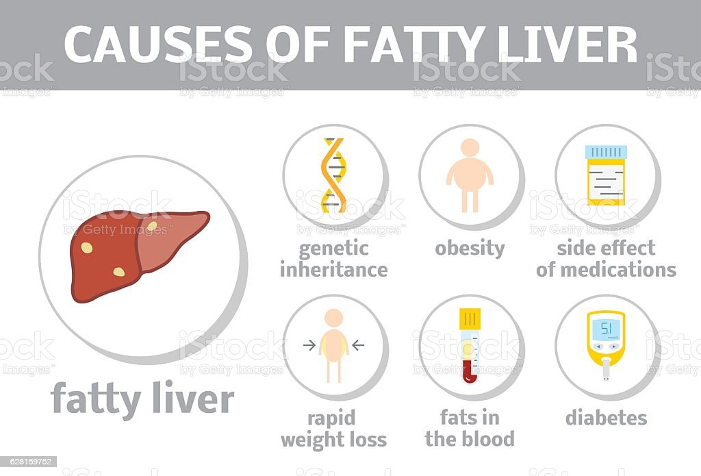 Causes of fatty liver vetor e ilustrao royalty free 628159752 istock causes of fatty liver vetor e ilustrao royalty free royalty free ccuart Choice Image