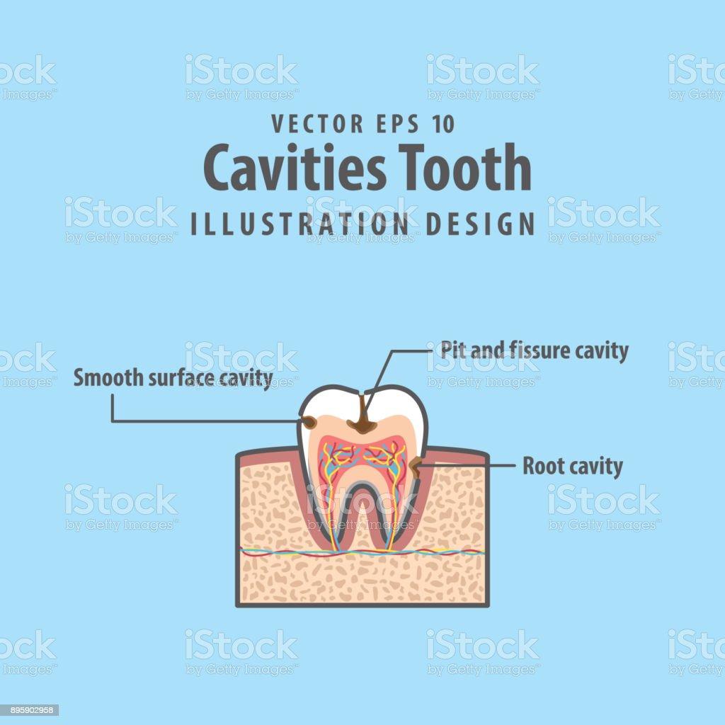 Ilustración de Cavitys Sección Dentaria Dentro De Diente Diagrama Y ...