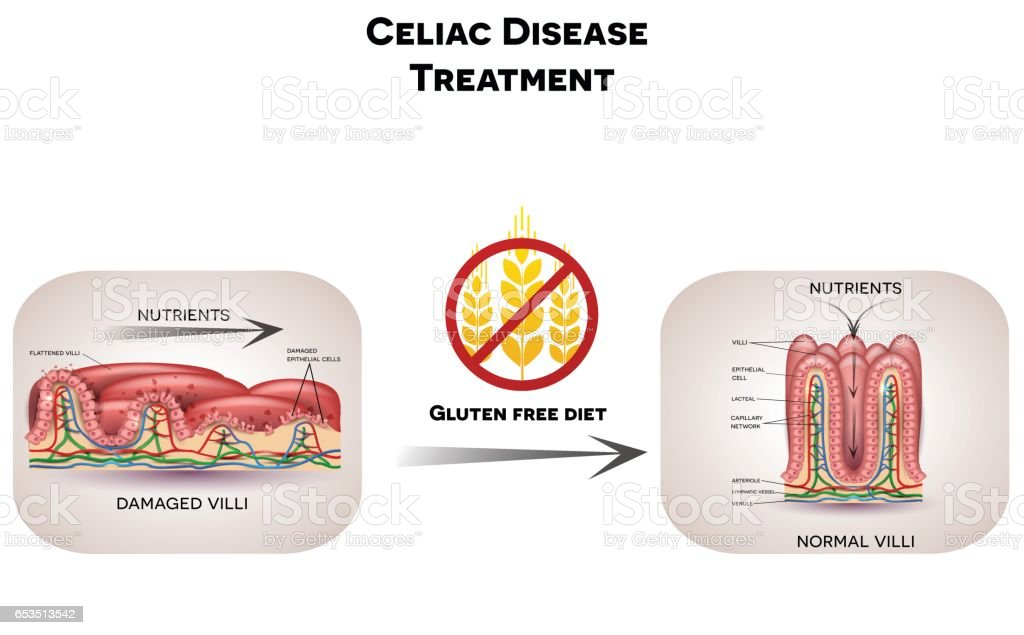 Celiac Disease Treatment Gluten Free Diet Stock ...