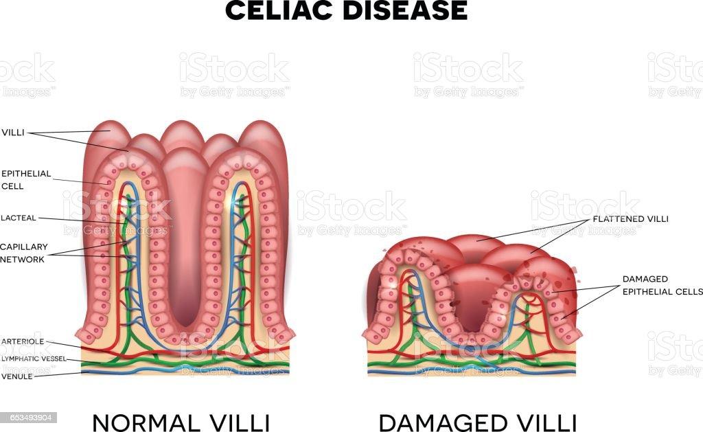 Celiac Disease Stock Vektor Art Und Mehr Bilder Von Anatomie