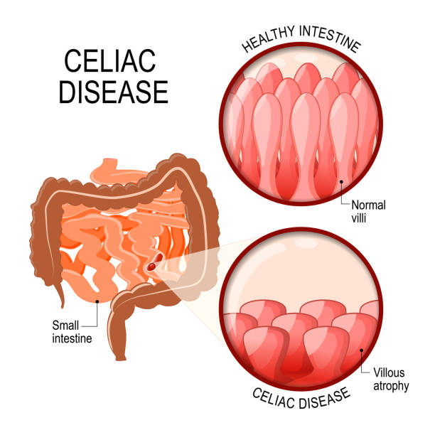 Celiac disease. Celiac disease. small intestinal with normal villi, and villous atrophy. Diagram showing changes in intestinal. coeliac disease manifested by blunting of villi. epithelium stock illustrations