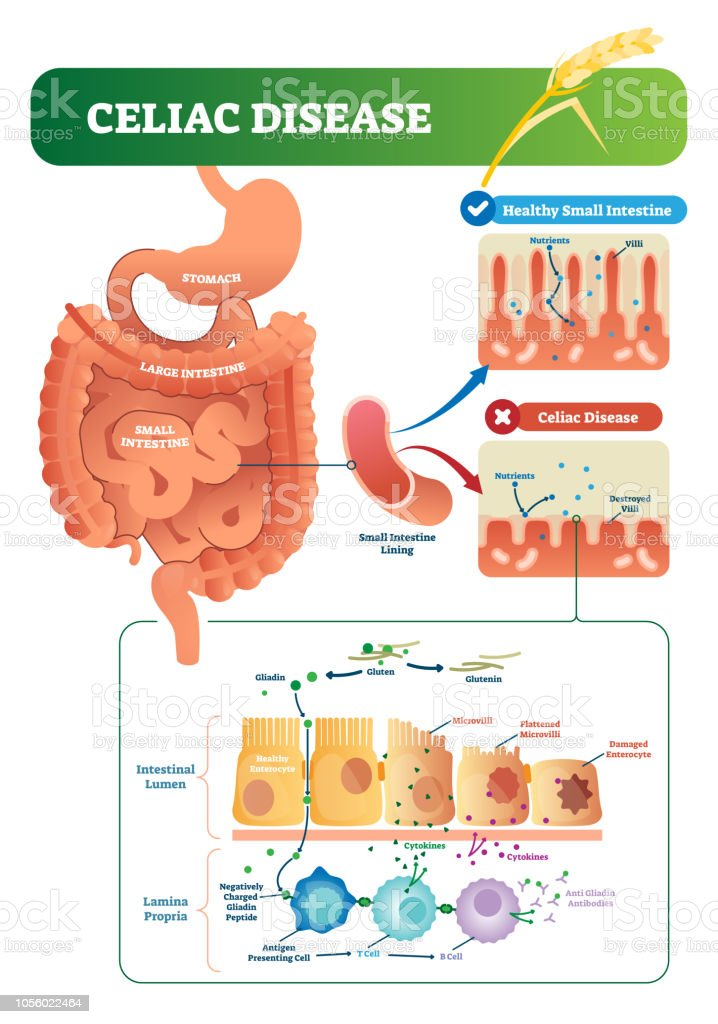 Celiac Disease Vector Illustration Labeled Diagram With Its Structure Stock Illustration
