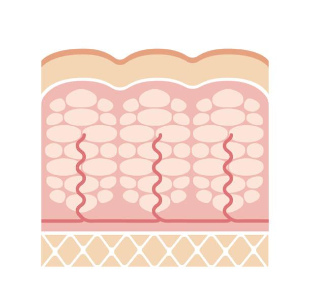 Cellulite's skin illustration (No text) Cellulite's skin illustration (No text) adipose tissue stock illustrations