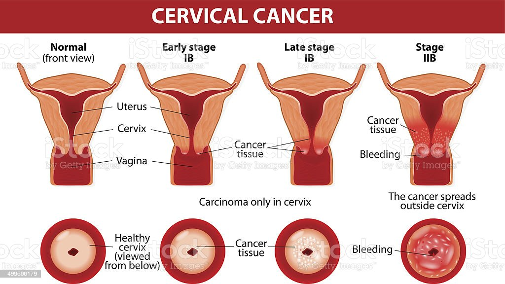 Cervical Cancer Carcinoma Of Cervix Stock Vector Art & More Images ...