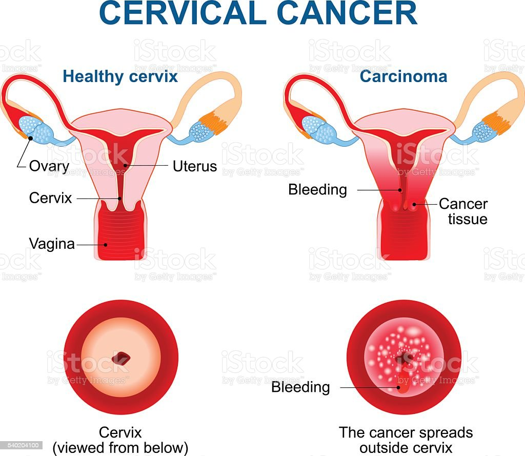 Cervical Cancer. Carcinoma of Cervix vector art illustration