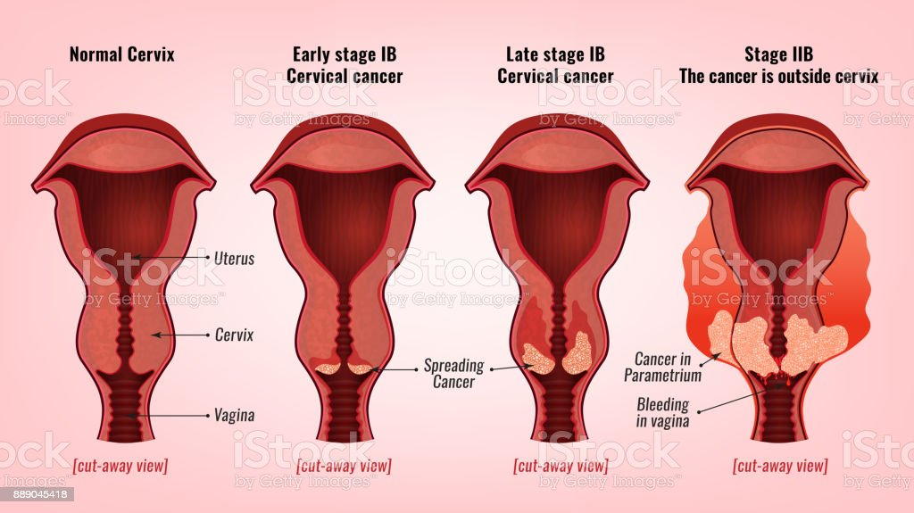 Cervical cancer image vector art illustration