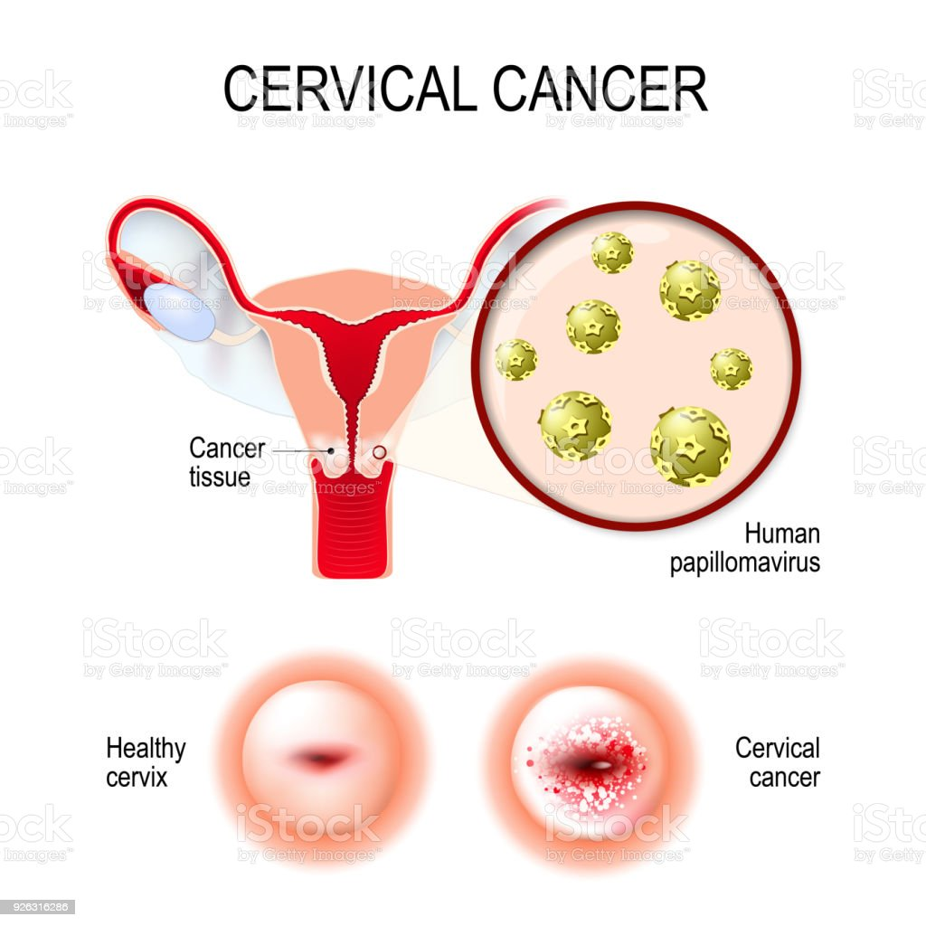 Cervical Cancer Uterus Cervix And Closeup Of The Human Papil Stock ...