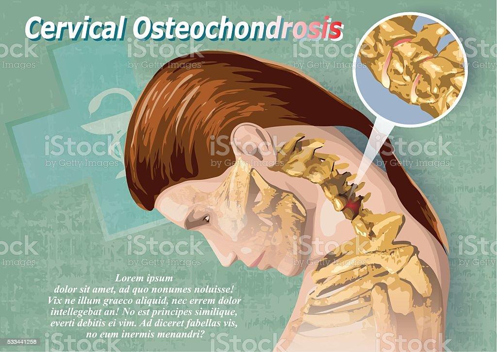 Cervical Osteochondrosis vector art illustration