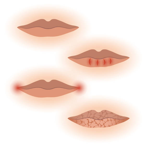 Best Dry Lips Illustrations, Royalty-Free Vector Graphics