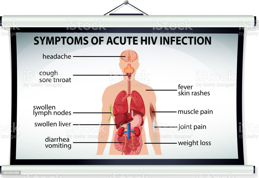 Chart Showing Symptoms Of Acute Hiv Infection Stock Vector Art ...