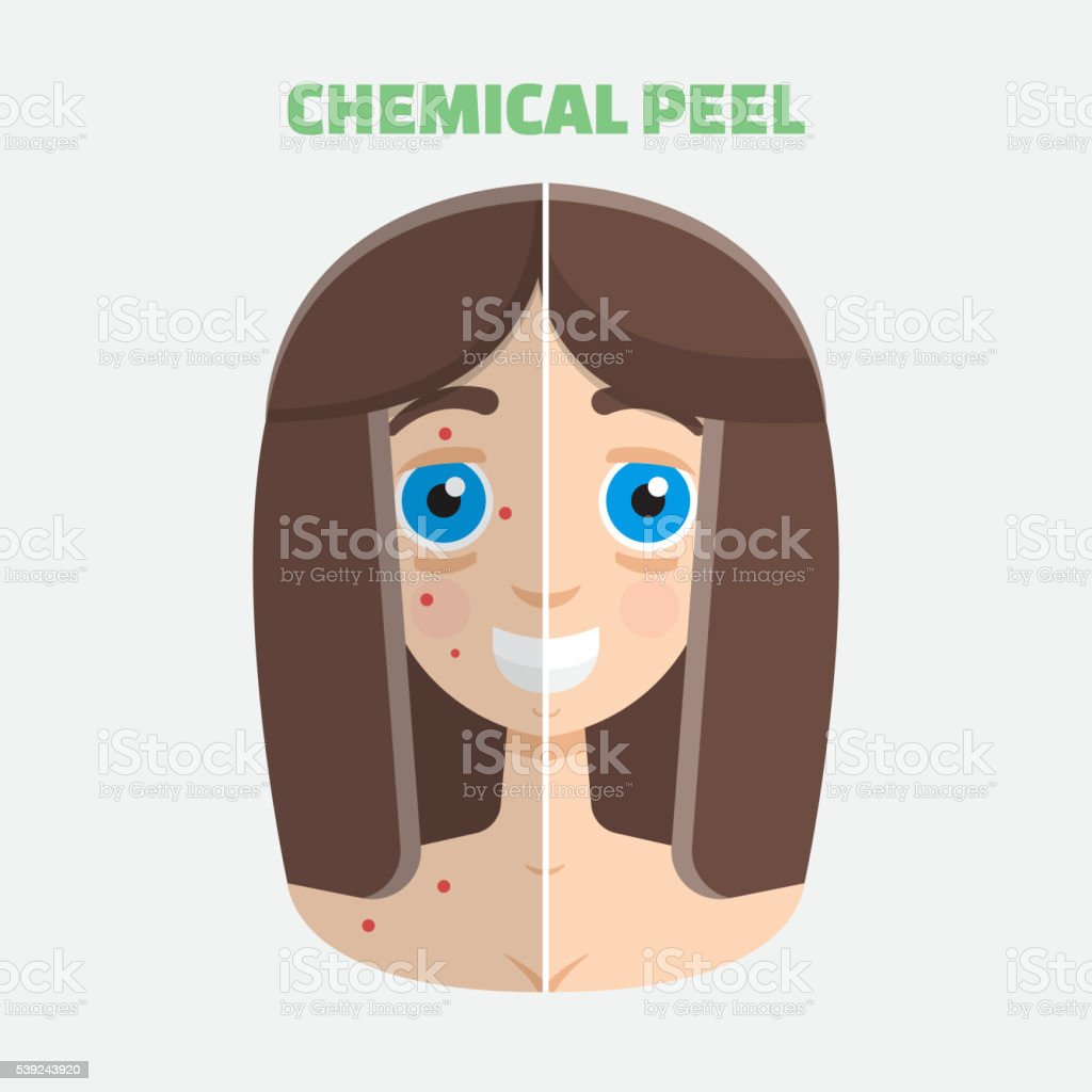 Chemical peel royalty-free chemical peel stock vector art & more images of acne