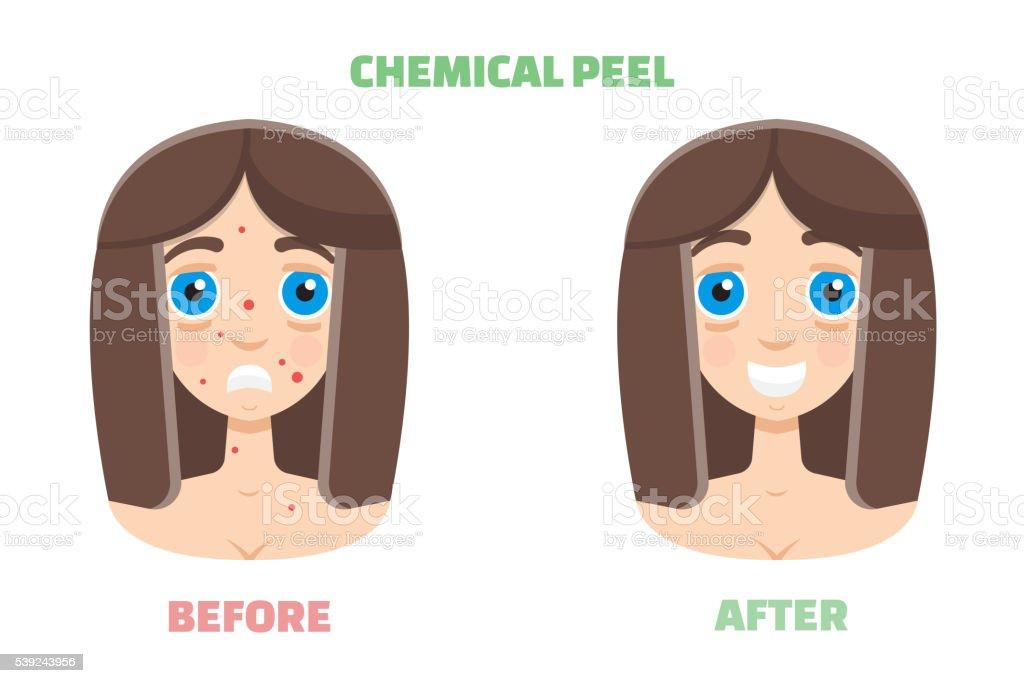 Química de piel ilustración de química de piel y más banco de imágenes de acné libre de derechos