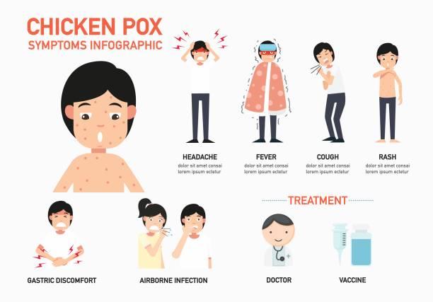 chicken pox symptoms infographic,illustration. vector art illustration