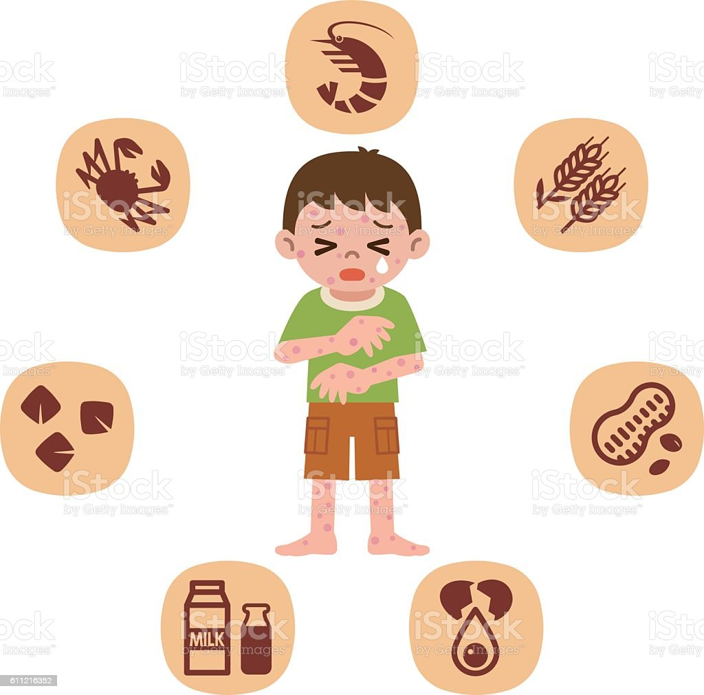 Children who suffer from allergies – Vektorgrafik