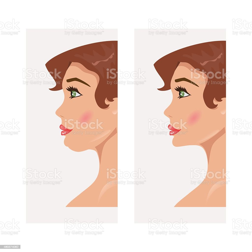 Chin before and after plastic surgery. Vector Illustration vector art illustration