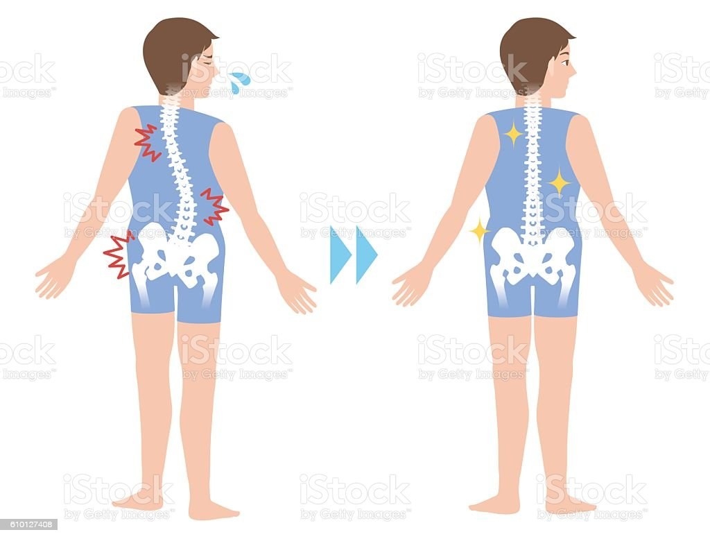chiropractic before after image - Illustration vectorielle