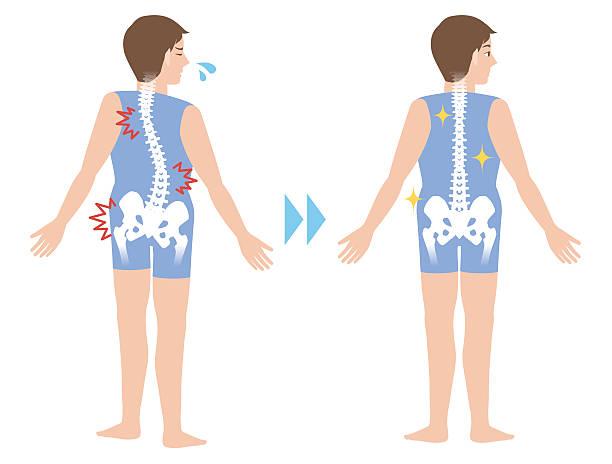 illustrations, cliparts, dessins animés et icônes de chiropractic before after image - chiropracteur