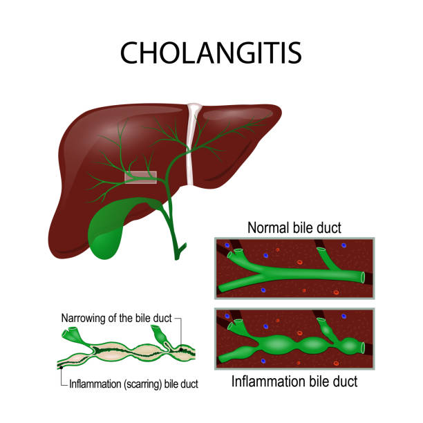 Cholangitis. Cross section of the human liver, bile duct, and ga Cholangitis (Ascending cholangitis, acute cholangitis) is an infection of the bile duct. Cross section of the human liver, bile duct, and gallbladder. vector illustration for medical, educational and science use bile stock illustrations