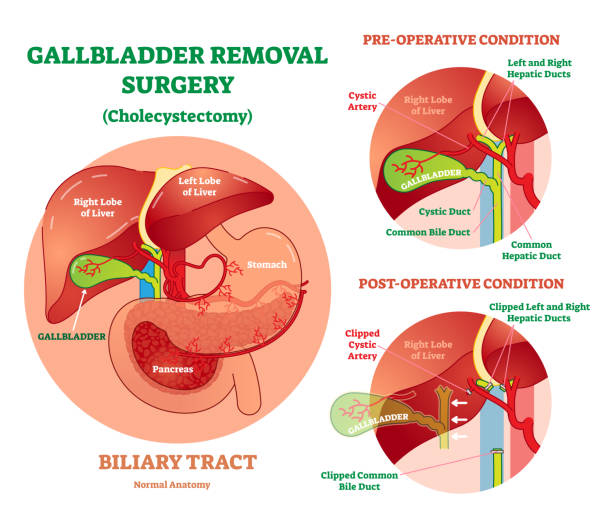 Royalty Free Hepatic Artery Clip Art, Vector Images & Illustrations ...