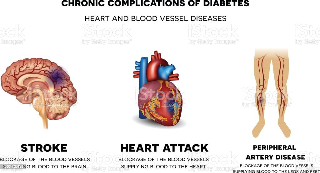 Chronic Complications Of Diabetes Heart And Blood Vessel Diseases ...
