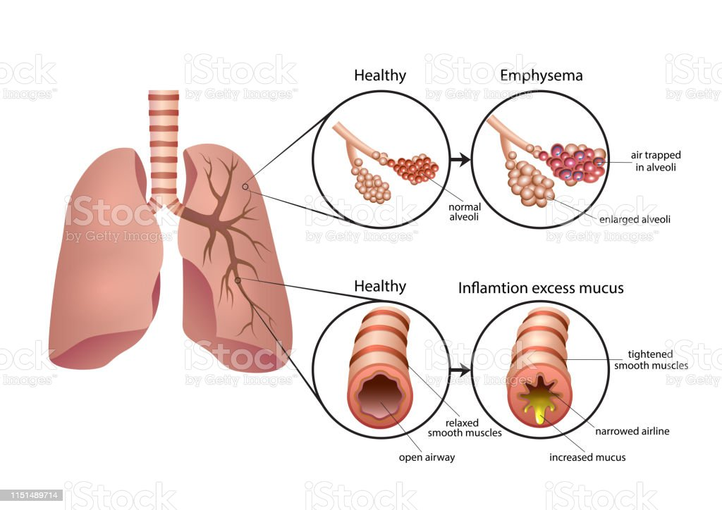 what produces chronic obstructive lung disease