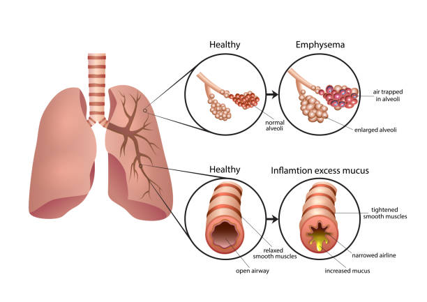 Chronic Obstructive Pulmonary Disease illustration Diseases of the respiratory system (bronchitis, asthma, C.O.P.D.) alveolar duct stock illustrations