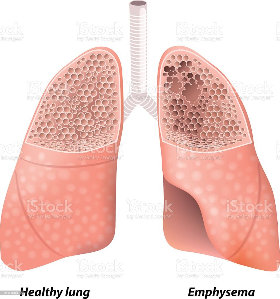 Chronic obstructive pulmonary disease vector art illustration