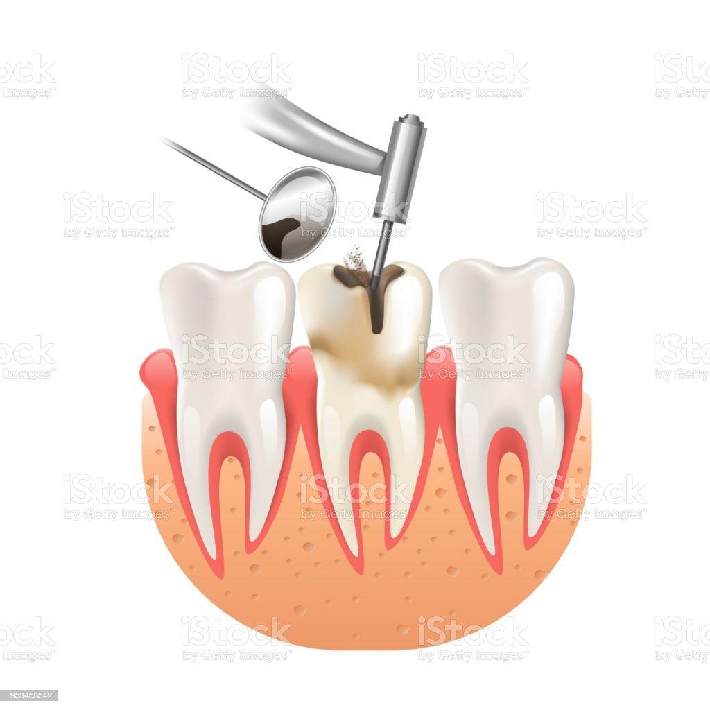 Ilustração de Limpe A Cárie Por Broca Dental Dente 3d Realistic e ...