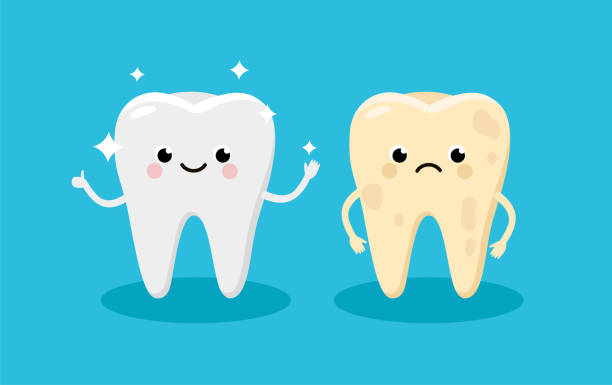illustrazioni stock, clip art, cartoni animati e icone di tendenza di cleaning and whitening teeth concept vector illustration. snow-white happy tooth and yellow moody tooth cartoon characters in flat design. tooth before and after whitening infographic elements - denti