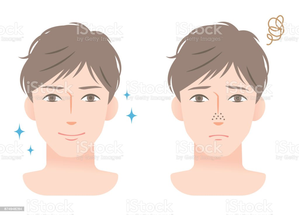 clogged pores and clean pores on nose of young men's face vector art illustration