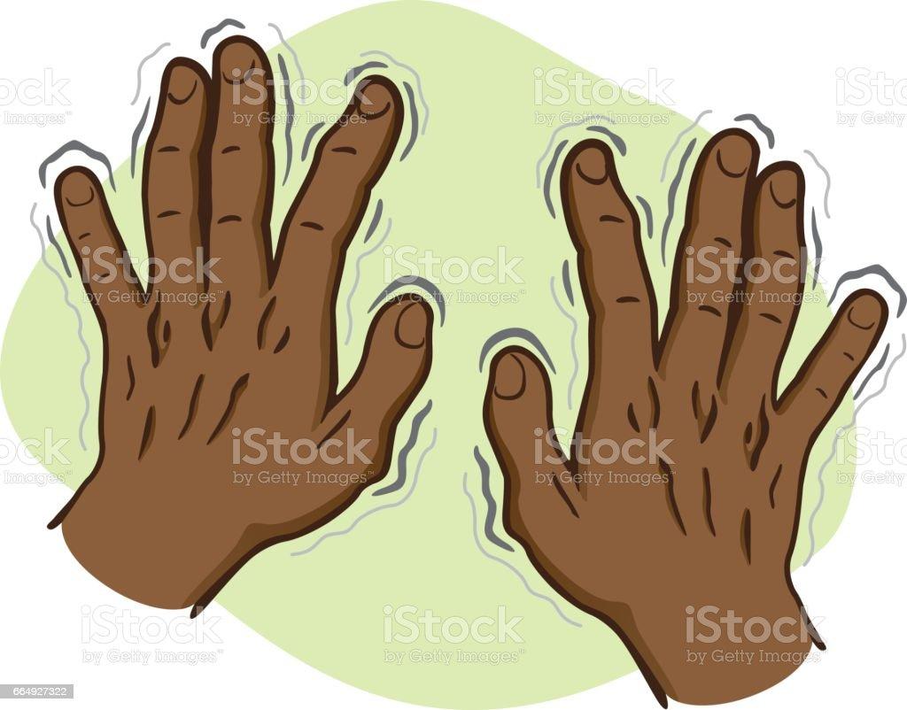 Close Body Part Pair Of Hands Shaking Symptoms Of Parkinsons Disease ...