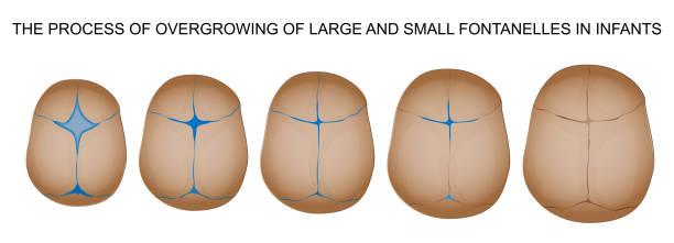 closure of the fontanel of newborn vector illustration of the closure of the fontanel of newborn occipital lobe stock illustrations