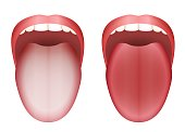 Coated white tongue and clean healthy tongue by comparison - isolated vector illustration on white background.