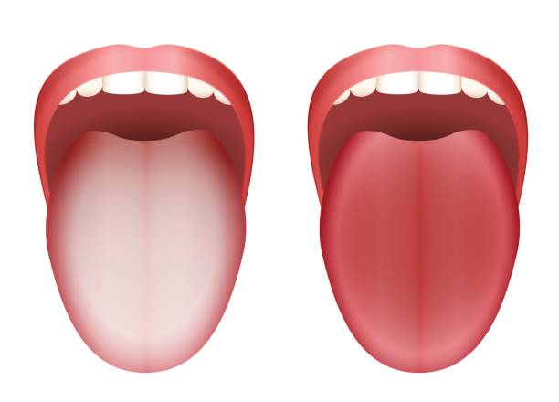 Coated white tongue and clean healthy tongue by comparison - isolated vector illustration on white background. vector art illustration