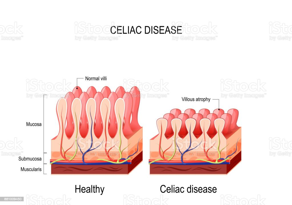 Coeliac (celiac) disease. normal villi and villous atrophy. vector art illustration