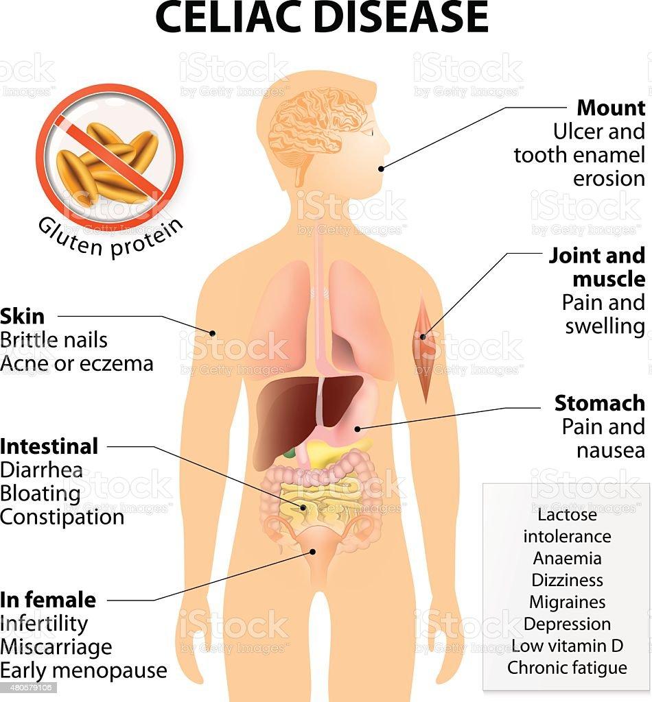 Coeliac Disease Or Celiac Disease Stock Vector Art More Images Of