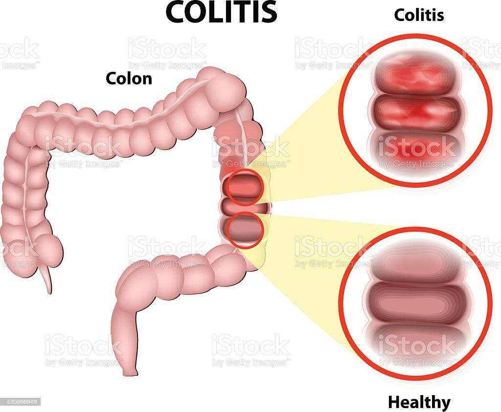 Colitis vector art illustration