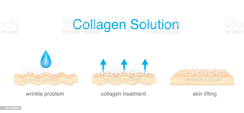 Collagen Treatment wrinkle on Skin to be smoother and younger.