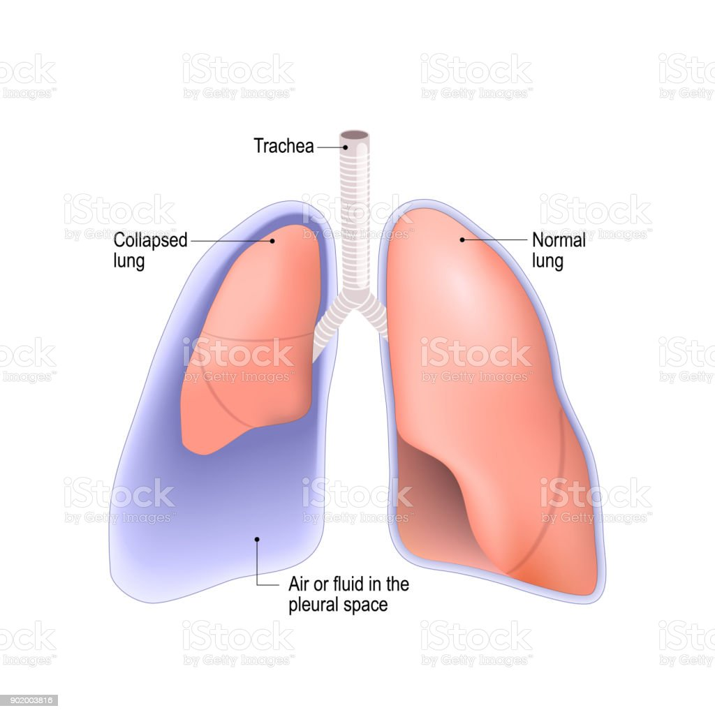 Collapsed lung. pneumothorax, or pleural effusion, or empyema vector art illustration