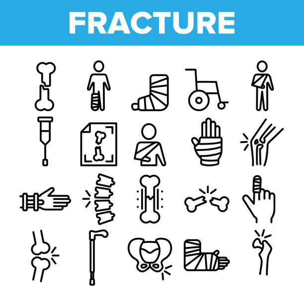 Collection Fracture Elements Vector Sign Icons Set Collection Fracture Elements Vector Sign Icons Set Thin Line. Gypsum Foot And Hand Arm Crutch, Bones Fracture Linear Pictograms. Medicine Details And Character Monochrome Contour Illustrations human limb stock illustrations