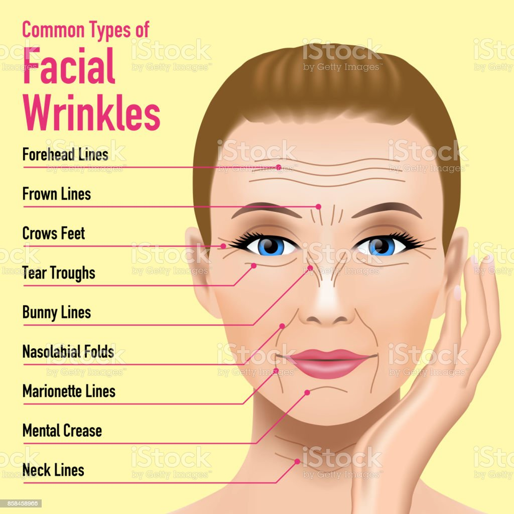 Common Types of Facial Wrinkles. cosmetic surgery. woman facial treatment concept. vector art illustration