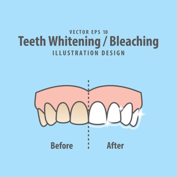 bildbanksillustrationer, clip art samt tecknat material och ikoner med jämföra övre tandblekning whitening före och efter illustration vektor på blå bakgrund. dental koncept. - tandblekning