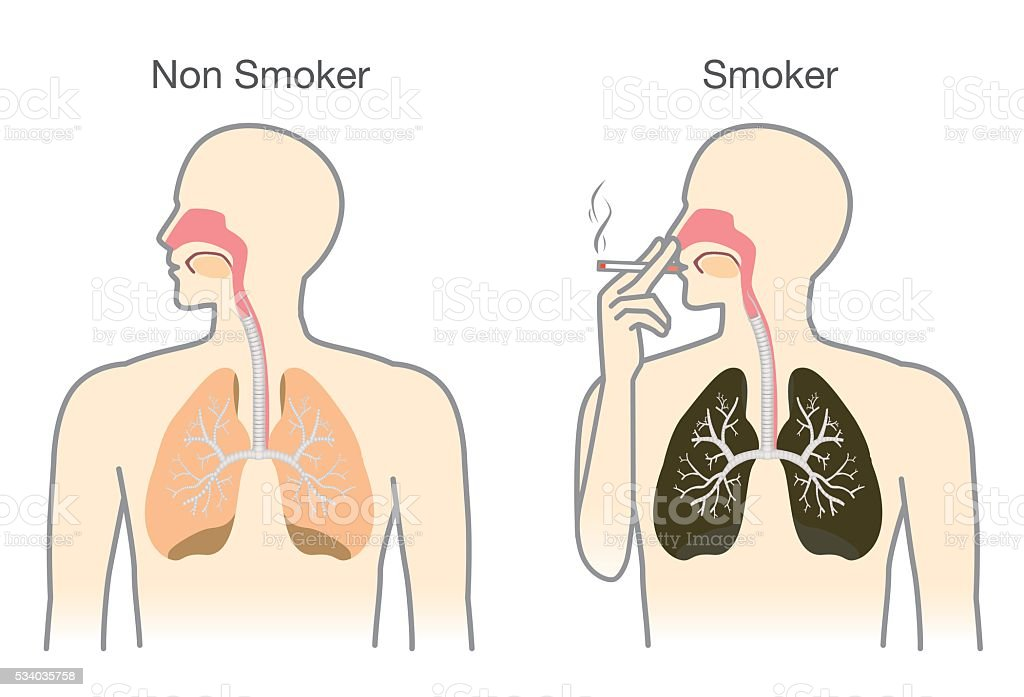 Comparison between lung of smoker and non smoker. vector art illustration