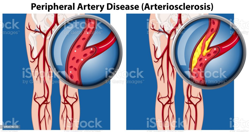 A Comparison of Peripheral Artery Disease vector art illustration