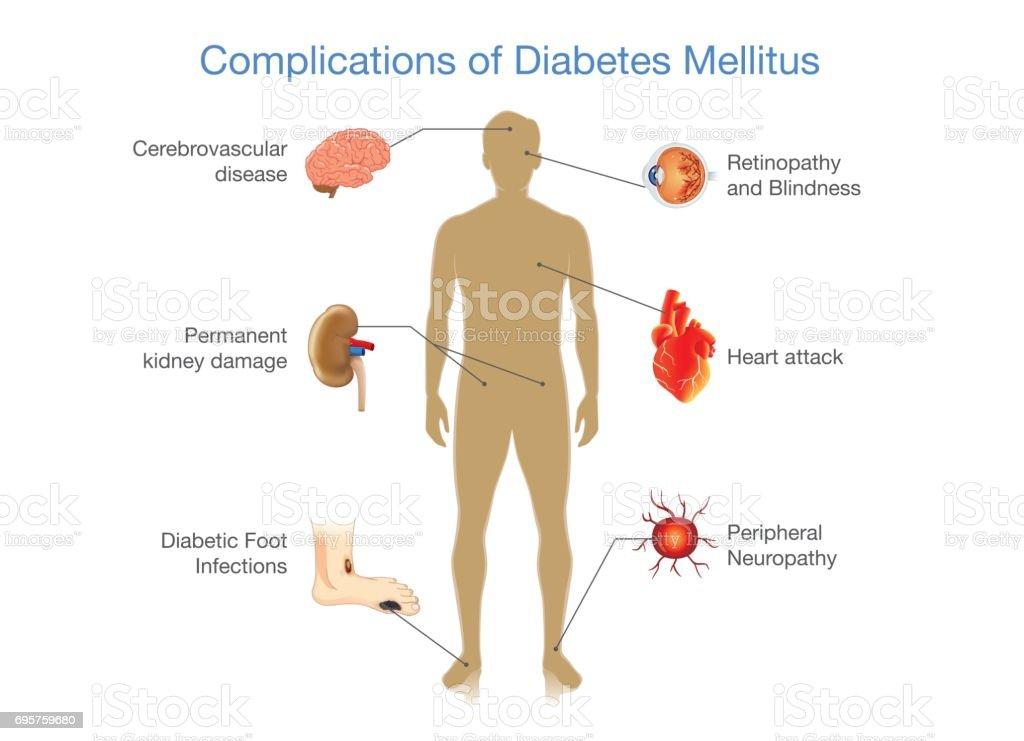 Ilustración de Complicaciones De La Diabetes Mellitus y más banco de ...